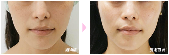 collagen_peel04
